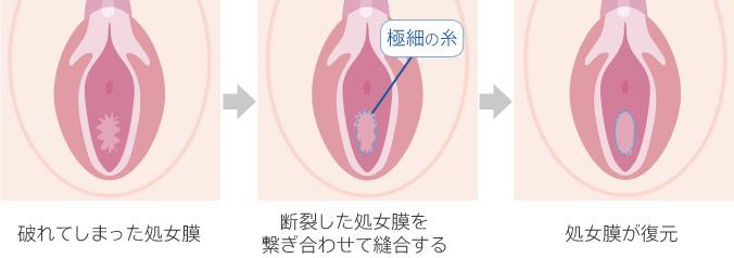 切開 痛み 処女膜 術